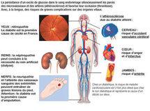 Conséquences du diabète