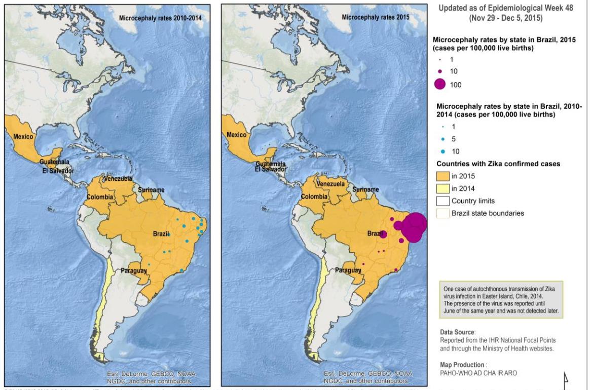 Epidémie de Zika au Brésil en cours